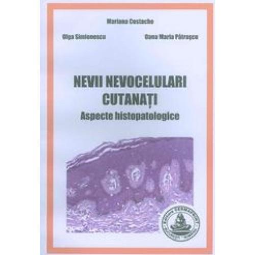 NEVII NEVOCELULARI CUTANATI - Aspecte Histopatologice